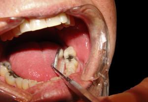 dentist dental mouth